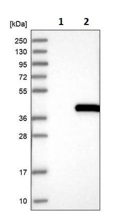 Western blot - Anti-ELMOD1 antibody (ab243817)
