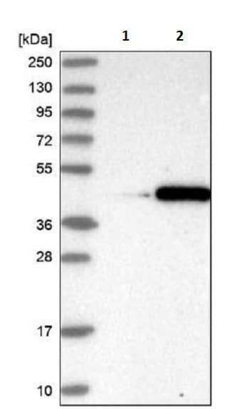 Western blot - Anti-FANK1 antibody (ab243828)