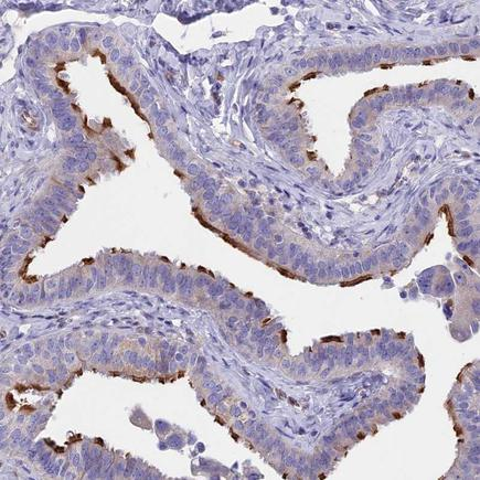 Immunohistochemistry (Formalin/PFA-fixed paraffin-embedded sections) - Anti-TMEM138 antibody (ab243829)