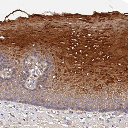 Immunohistochemistry (Formalin/PFA-fixed paraffin-embedded sections) - Anti-MRPL35 antibody (ab243833)