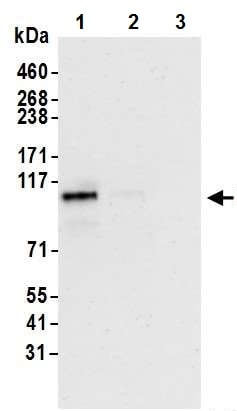 Immunoprecipitation - Anti-HIF-2-alpha antibody [BL-95-1A2] (ab243861)