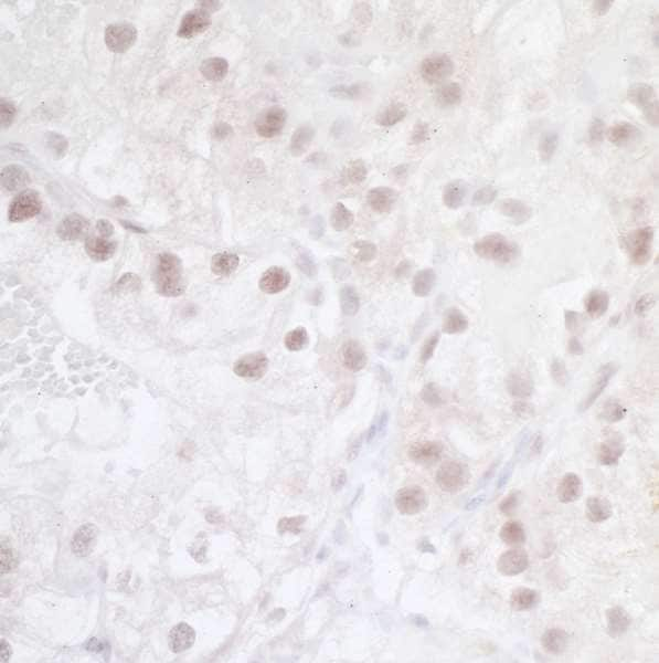 Immunohistochemistry (Formalin/PFA-fixed paraffin-embedded sections) - Anti-HIF-2-alpha antibody [BL-95-1A2] (ab243861)
