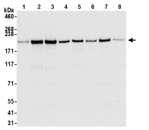 Western blot - Anti-Brd4 antibody [BL-149-2H5] (ab243862)