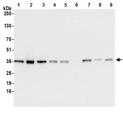 Western blot - Anti-Cdk7 antibody [BL-80-3D4] (ab243863)