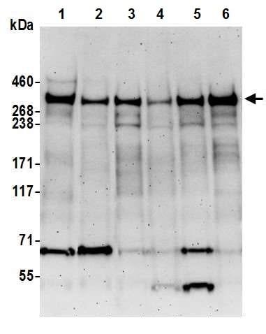 Western blot - Anti-KMT2A / MLL antibody [BL-175-7E8] (ab243867)