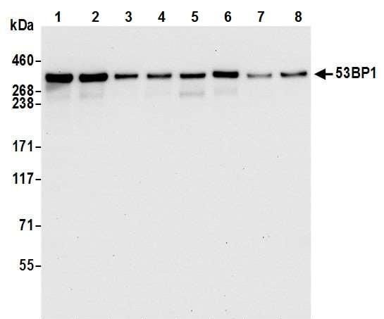 Western blot - Anti-53BP1 antibody [BL-250-1H11] (ab243868)
