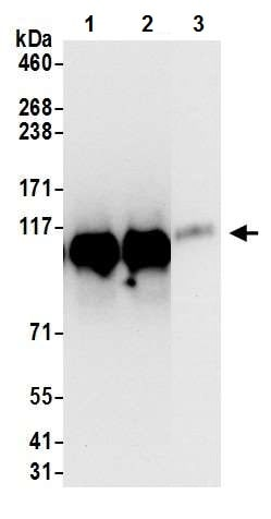 Immunoprecipitation - Anti-KAP1 antibody [BL-248-2G6] (ab243871)