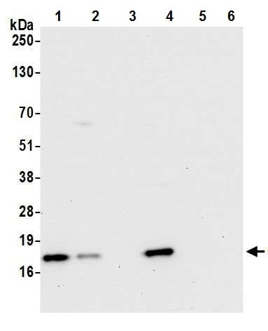 Western blot - Anti-CD3 zeta antibody [BL-336-1B2] (ab243874)
