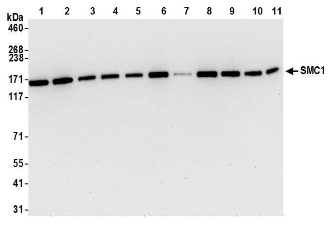 Western blot - Anti-SMC1A antibody [BL-205-2G8] (ab243875)
