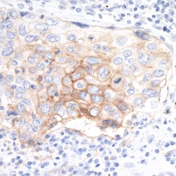 Immunohistochemistry (Formalin/PFA-fixed paraffin-embedded sections) - Anti-PD-L1 antibody [BLR020E] (ab243877)