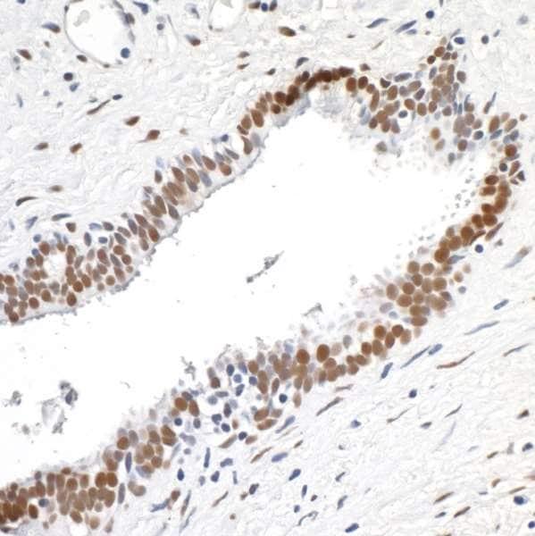 Immunohistochemistry (Formalin/PFA-fixed paraffin-embedded sections) - Anti-TLS/FUS antibody [BLR023E] (ab243880)