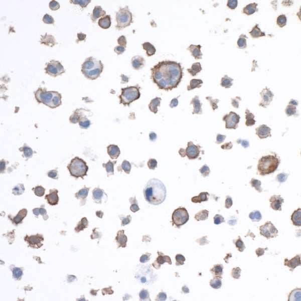 Immunocytochemistry - Anti-LAG-3 antibody [BLR027F] (ab243884)