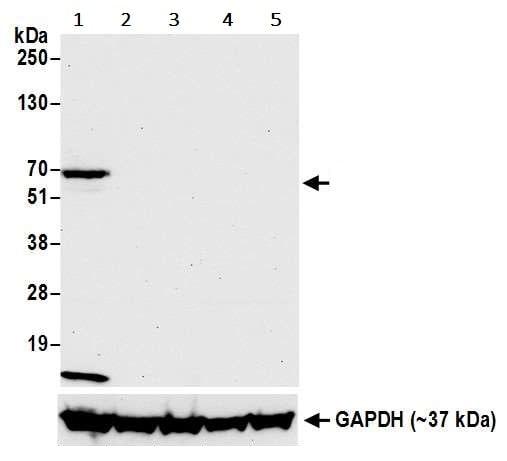 Western blot - Anti-LAG-3 antibody [BLR027F] (ab243884)