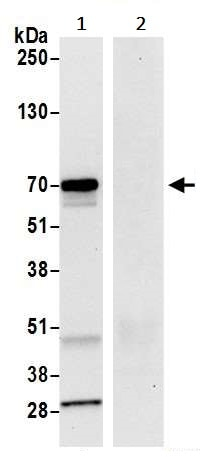 Immunoprecipitation - Anti-LAG-3 antibody [BLR027F] (ab243884)