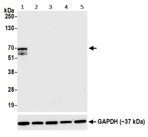 Western blot - Anti-LAG-3 antibody [BLR028F] - BSA free (ab243885)
