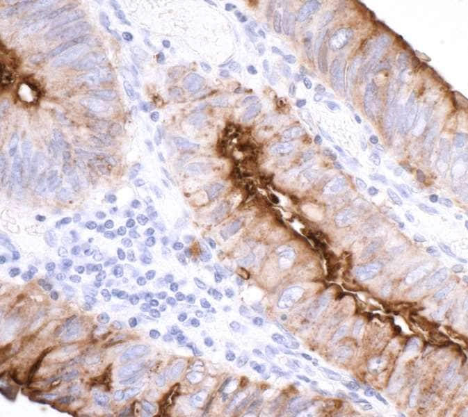 Immunohistochemistry (Formalin/PFA-fixed paraffin-embedded sections) - Anti-CEACAM1 antibody [BLR032F] (ab243889)