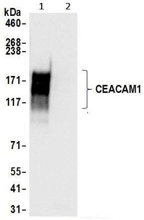 Immunoprecipitation - Anti-CEACAM1 antibody [BLR032F] (ab243889)