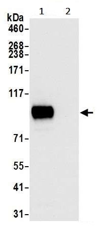 Immunoprecipitation - Anti-CD44 antibody [BLR038F] (ab243894)