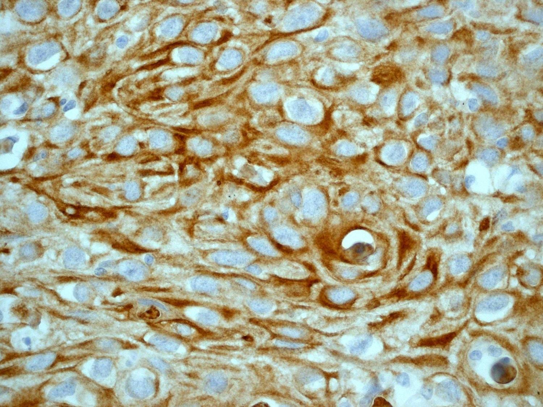 Immunohistochemistry (Formalin/PFA-fixed paraffin-embedded sections) - Anti-Cytokeratin 14 antibody [EP1612Y] - BSA and Azide free (ab243907)