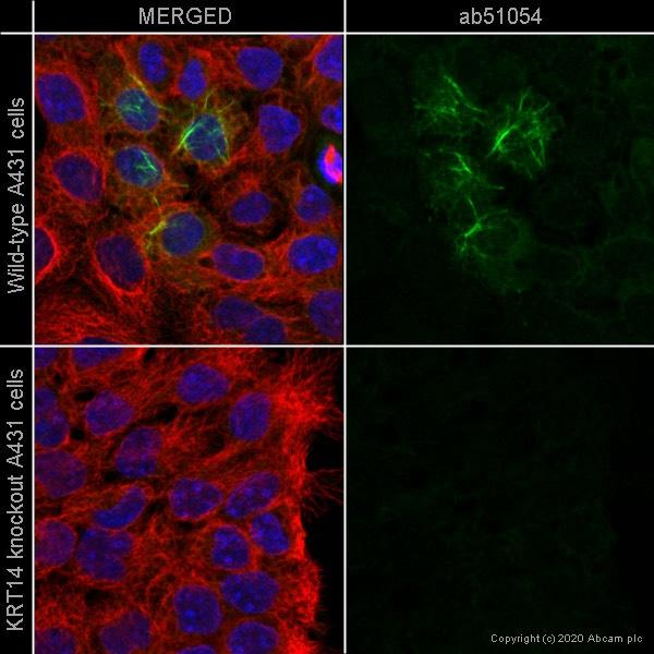 Immunocytochemistry - Anti-Cytokeratin 14 antibody [EP1612Y] - BSA and Azide free (ab243907)