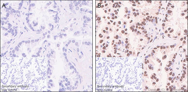Immunohistochemistry (Formalin/PFA-fixed paraffin-embedded sections) - Anti-Rb2 p130 (phospho S952) antibody [EP2387AY] - BSA and Azide free (ab243908)