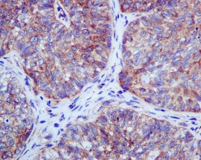 Immunohistochemistry (Formalin/PFA-fixed paraffin-embedded sections) - Anti-RENT1/hUPF1 antibody [EPR4681] - BSA and Azide free (ab243911)