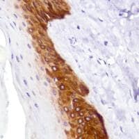 Immunohistochemistry (Formalin/PFA-fixed paraffin-embedded sections) - Anti-Cytokeratin 5 antibody [SP178] - BSA and Azide free (ab243922)
