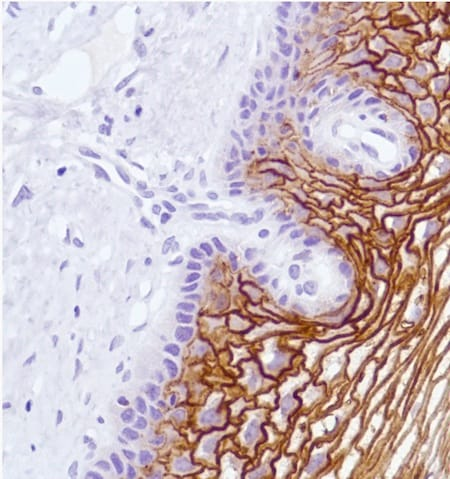 Immunohistochemistry (Formalin/PFA-fixed paraffin-embedded sections) - Anti-LYPD3 antibody [SP204] - BSA and Azide free (ab243924)