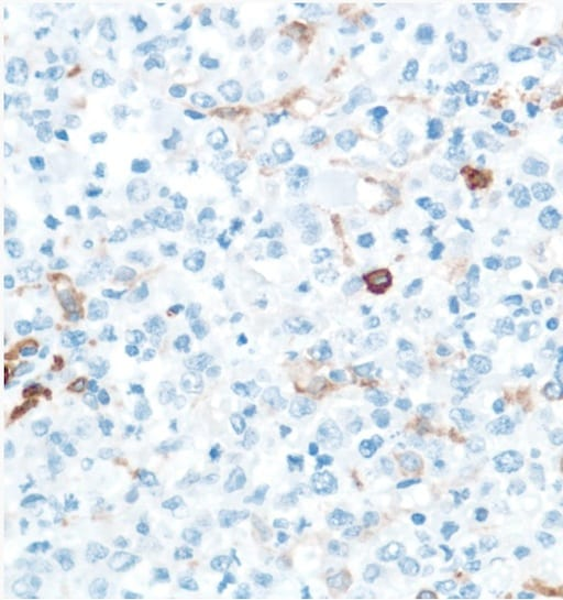 Immunohistochemistry (Formalin/PFA-fixed paraffin-embedded sections) - Anti-CD16 antibody [SP175] - BSA and Azide free (ab243925)