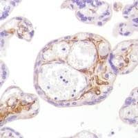 Immunohistochemistry (Formalin/PFA-fixed paraffin-embedded sections) - Anti-CD13 antibody [SP182] - BSA and Azide free (ab243926)
