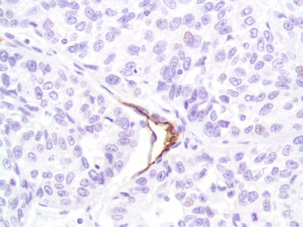 Immunohistochemistry (Formalin/PFA-fixed paraffin-embedded sections) - Anti-CD31 antibody [SP164] - BSA and Azide free (ab243932)