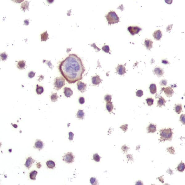 Immunohistochemistry (Formalin/PFA-fixed paraffin-embedded sections) - Anti-NRAS (mutated Q61 R) antibody [SP174] - BSA and Azide free (ab243933)