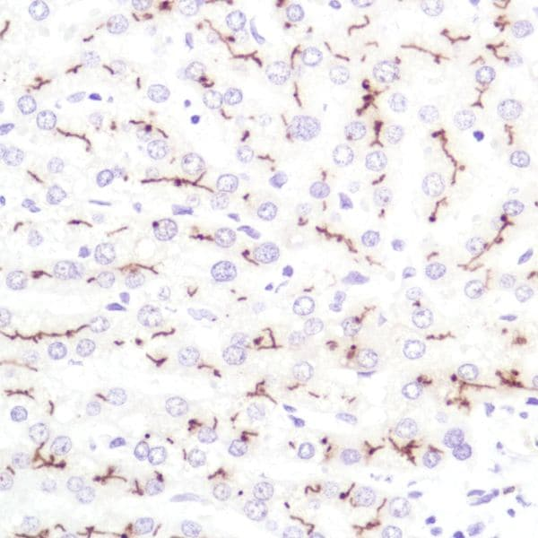 Immunohistochemistry (Formalin/PFA-fixed paraffin-embedded sections) - Anti-CD10 antibody [SP179] - BSA and Azide free (ab243934)