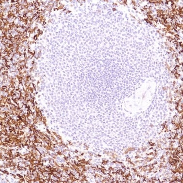 Immunohistochemistry (Formalin/PFA-fixed paraffin-embedded sections) - Anti-CD16 antibody [SP189] - BSA and Azide free (ab243936)