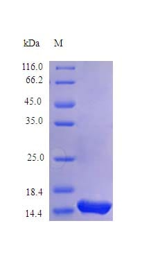 SDS-PAGE - Recombinant rhesus monkey IL-4 protein (Active) (ab243953)