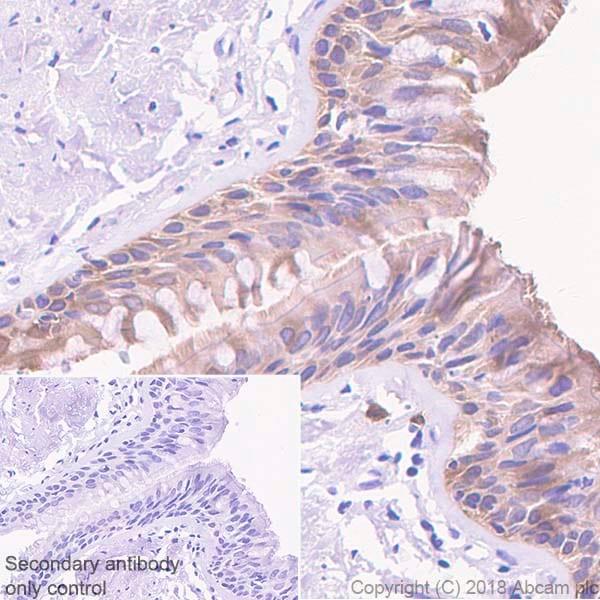 Immunohistochemistry (Formalin/PFA-fixed paraffin-embedded sections) - Anti-15 Lipoxygenase 1 antibody [EPR22138] (ab244205)