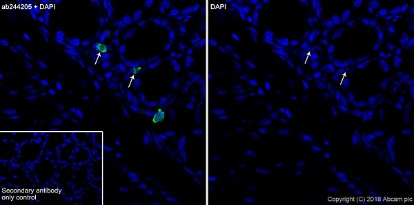 Immunohistochemistry (Frozen sections) - Anti-15 Lipoxygenase 1 antibody [EPR22138] (ab244205)