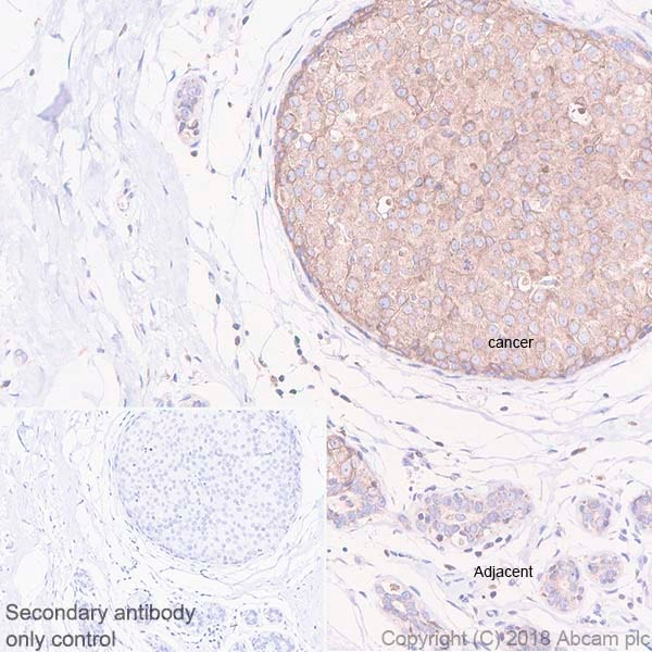 Immunohistochemistry (Formalin/PFA-fixed paraffin-embedded sections) - Anti-PTP1B antibody [EPR22474] (ab244207)