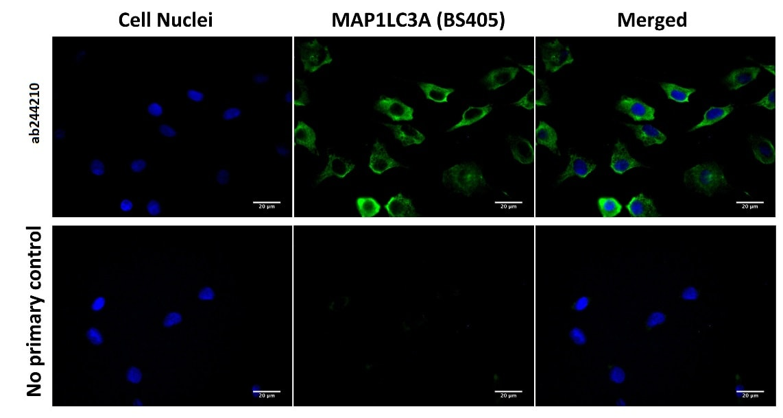 Immunocytochemistry/ Immunofluorescence - Anti-MAP1LC3A antibody [BS405] (ab244210)