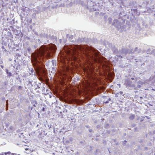 Immunohistochemistry (Formalin/PFA-fixed paraffin-embedded sections) - Anti-SCGN/Secretagogin antibody [CL0271] (ab244219)