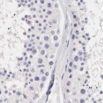 Immunohistochemistry (Formalin/PFA-fixed paraffin-embedded sections) - Anti-Ornithine Carbamoyltransferase/OTC antibody (ab244243)