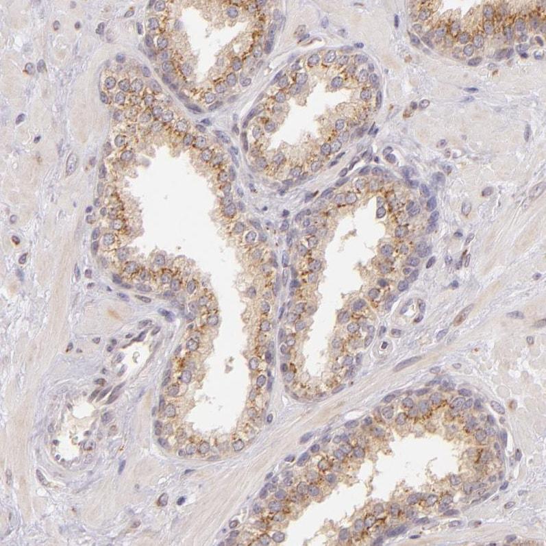 Immunohistochemistry (Formalin/PFA-fixed paraffin-embedded sections) - Anti-Legumain antibody (ab244251)