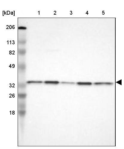 Western blot - Anti-CYB5R3 antibody (ab244253)