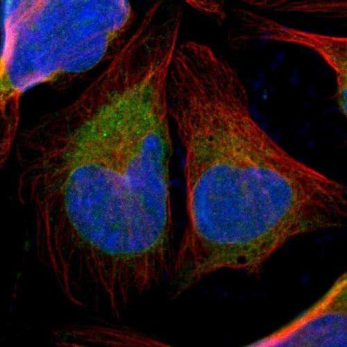 Immunocytochemistry/ Immunofluorescence - Anti-TXNDC/TMX antibody (ab244263)