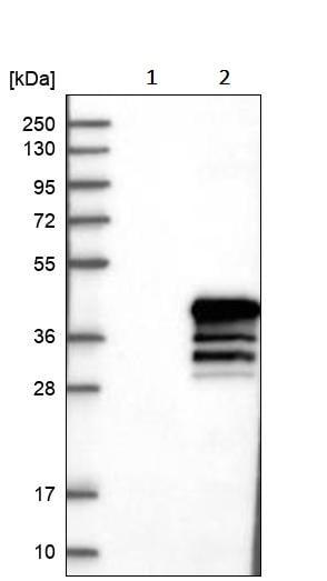 Western blot - Anti-Nkx2.2 antibody (ab244270)