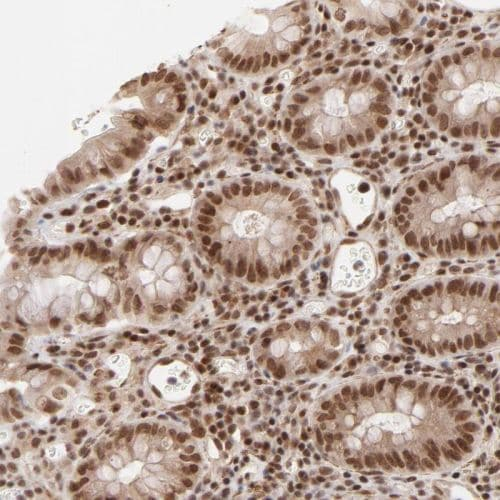 Immunohistochemistry (Formalin/PFA-fixed paraffin-embedded sections) - Anti-CTCF antibody (ab244273)
