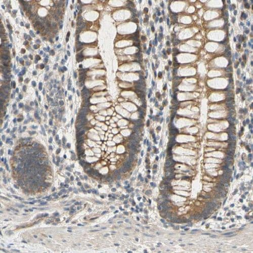 Immunohistochemistry (Formalin/PFA-fixed paraffin-embedded sections) - Anti-S2P antibody (ab244279)