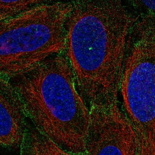 Immunocytochemistry/ Immunofluorescence - Anti-MYO1C antibody (ab244283)