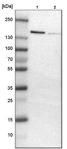 Western blot - Anti-ADNP antibody (ab244286)