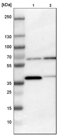Western blot - Anti-CCT3 antibody (ab244288)